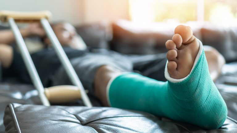 Broken Bones - Contact Injury Attorney
